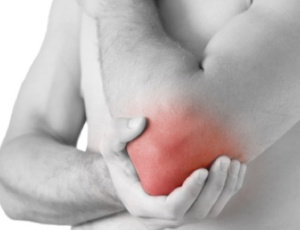PRP Therapy for Tennis Elbow